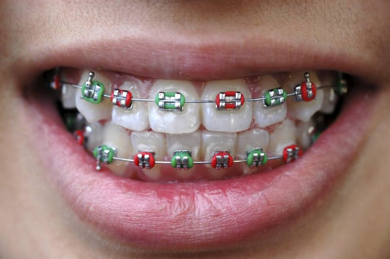 Emergency Braces Care Over the Holidays