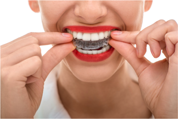 The First Week of Invisalign Treatment
