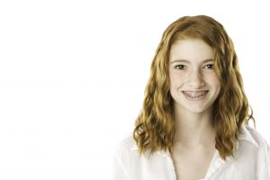 Will Dental Insurance Cover Braces for Children