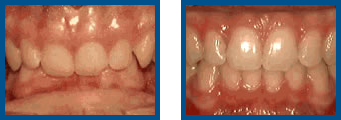 Deep Overbite: Lower Front Teeth Bite Into Palate