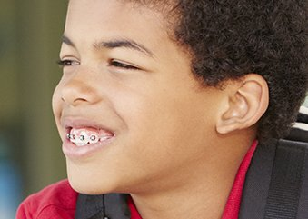 What is Orthodontics?