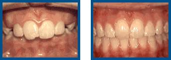 Overjet: Protruding Front Teeth