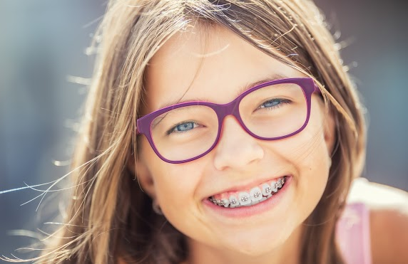 What is a Palatal Expander?