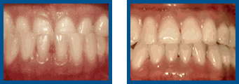 Underbite: Lower Front Teeth in Front of Upper Teeth